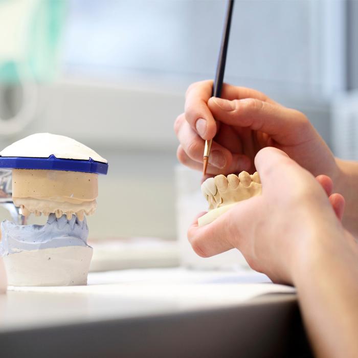 Corrección y restauración dental Efecto Smile