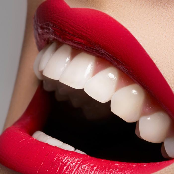 Estética dental Efecto Smile